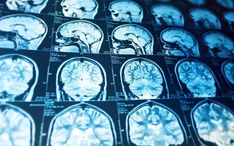 افزایش ابتلا به آلزایمر در بیماران کرونایی