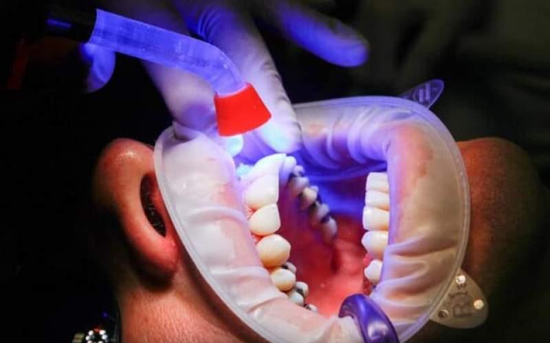 بیماریهای شایع دندان و راههای مقابله با آن
