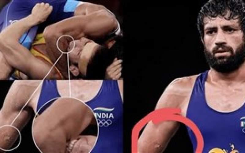 گاز گرفتن حریف، در کشتی المپیک (عکس)