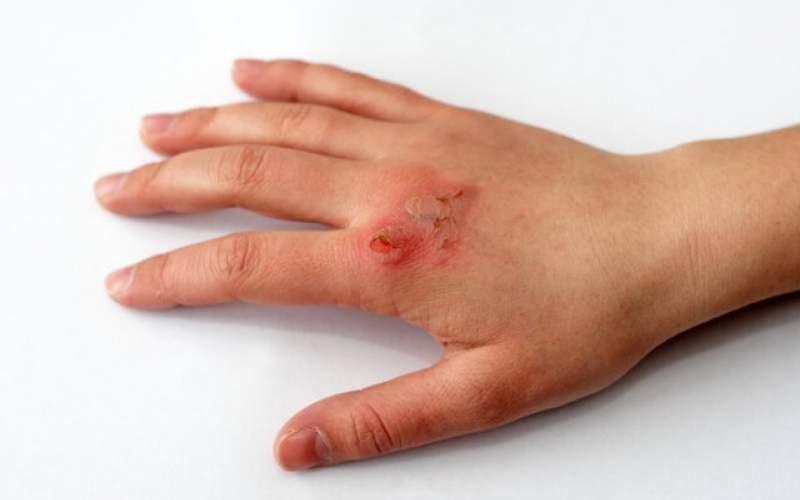 تشخی عفونت زخم با کمک حسگرهای کمهزینه