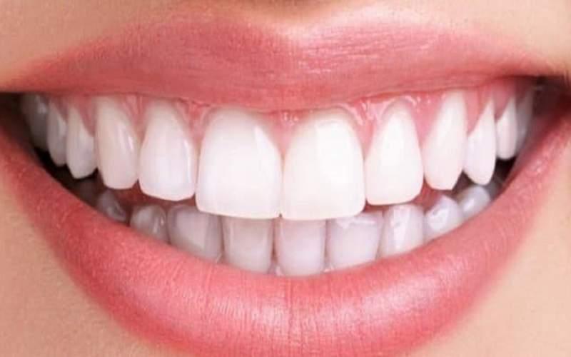 درباره ناهنجارهای دندانی چه می دانید؟