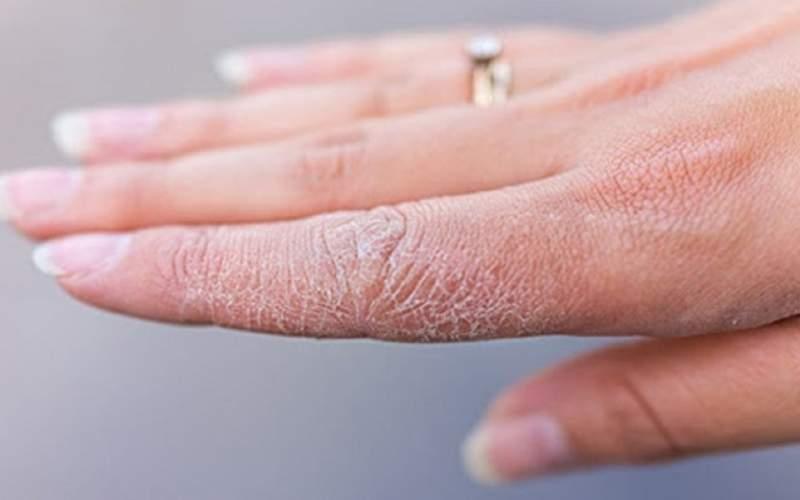 علل خشکی پوست و شیوههای درمان آن
