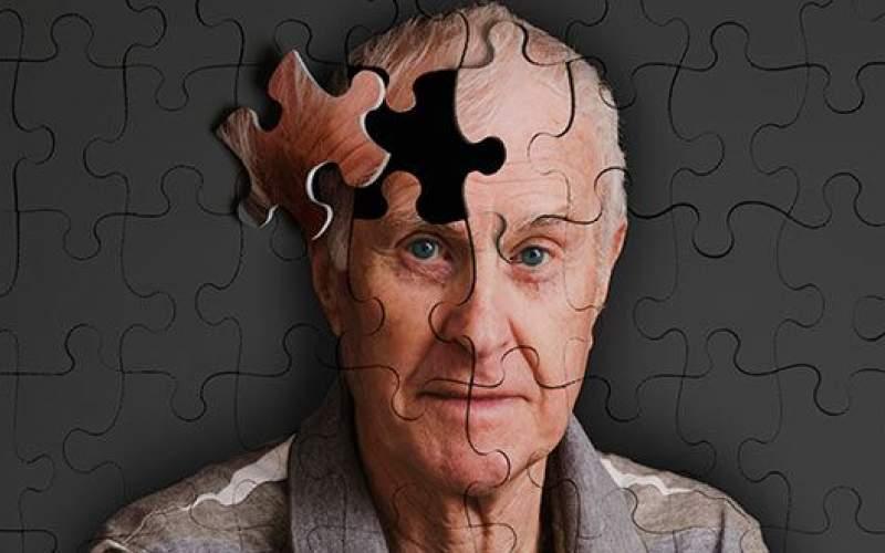 9 دلیل تعجبآور کاهش حافظه!