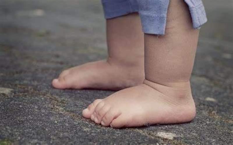 کف پای صاف چگونه ایجاد میشود و درمان آن چیست؟ (ارتز طبی، ورزش و ...)