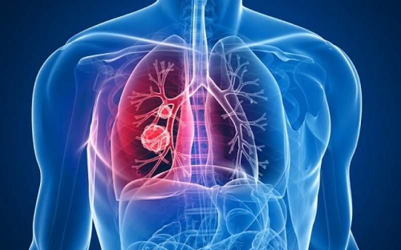 معرفی دارویی جدید برای مبتلایان به سرطان ریه