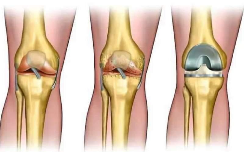 درمان آرتروز شدید زانو با جراحی آرتروپلاستی