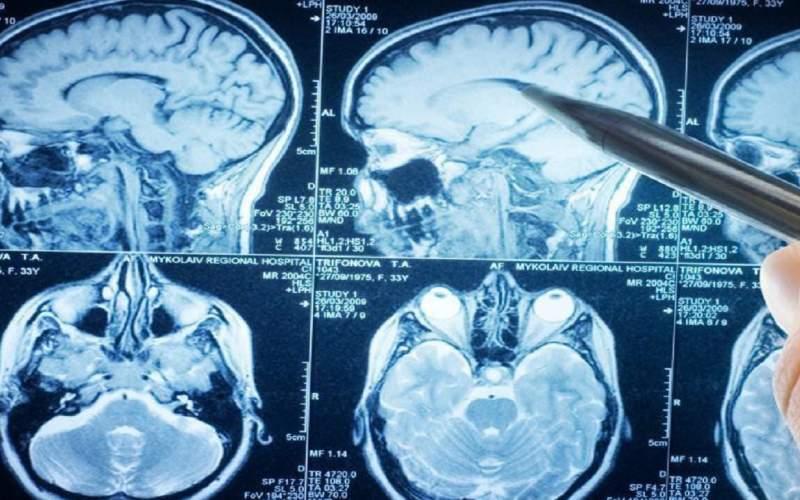 درمان مرگبارترین تومور مغزی با چند راهکار ساده