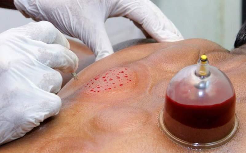 حجامت نمیتواند جایگزین واکسن کرونا شود