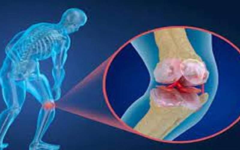 پوکی استخوان چه زمان در زنان شروع میشود؟