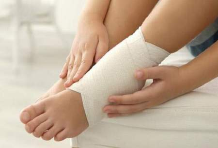 علل، علائم و درمان کشیدگی عضلانی