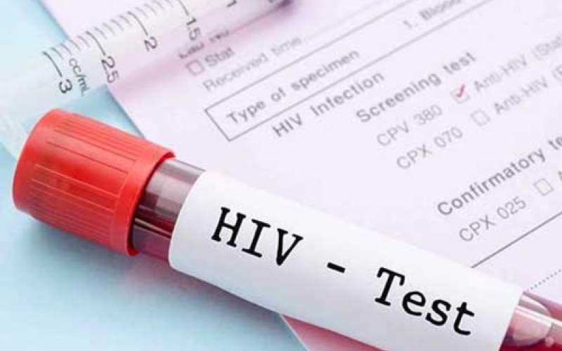 سرکوب HIV با یک روش جدید