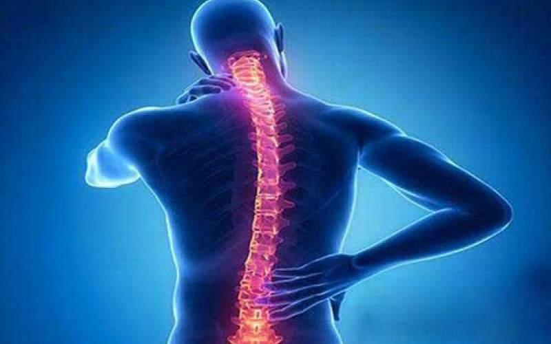 چه کسانی زودتر به آرتروز مبتلا میشوند؟
