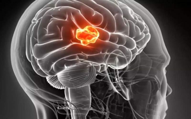 ورزش رشد تومورهای سرطانی را کند میکند