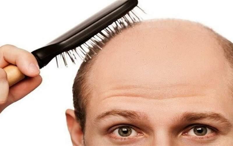 کمبودی در بدن که عامل ریزش مو است