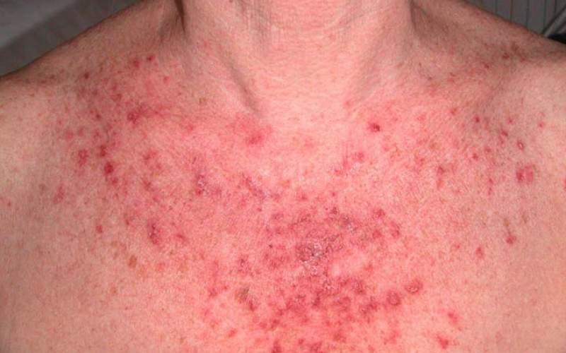 ریزش موی سر از علائم بیماری لوپوس
