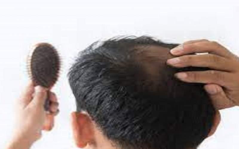 دلایل بهداشتی و پزشکی ریزش مو